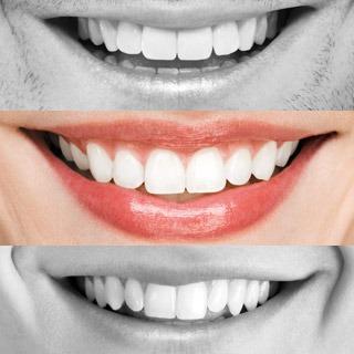 Die häufigsten Irrtümer über Zahnersatz von heute