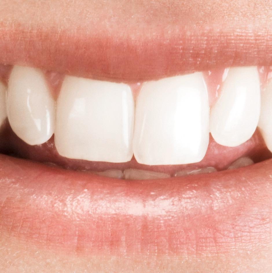 Zahnersatz sparen