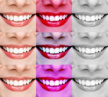 Zahnimplantate: Nicht mehr Risiken als anderer Zahnersatz